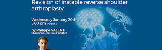 SHOULDER 3T : Revision of instable reverse shoulder arthroplasty [Wednesday, January 30th]